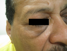 Гиперпигментация кожи лица фото