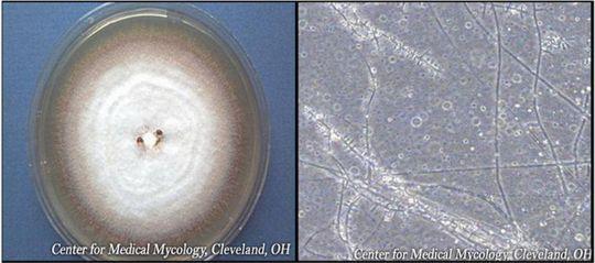 Грибковые инфекции ногтей (онихомикоз): никогда не заканчивающаяся история? Статьи - Профессиональная косметика и материалы для эстетической медицины